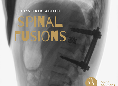 All about spinal fusion