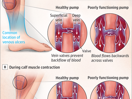What are Venous Ulcers?
