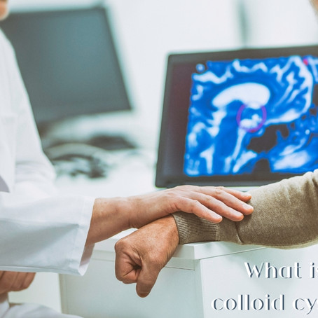 Colloid cysts