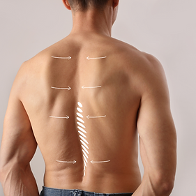 scoliosis spine solutions