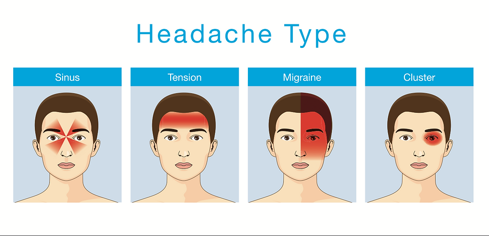Five (5) Types of Headaches You Should Never Ignore