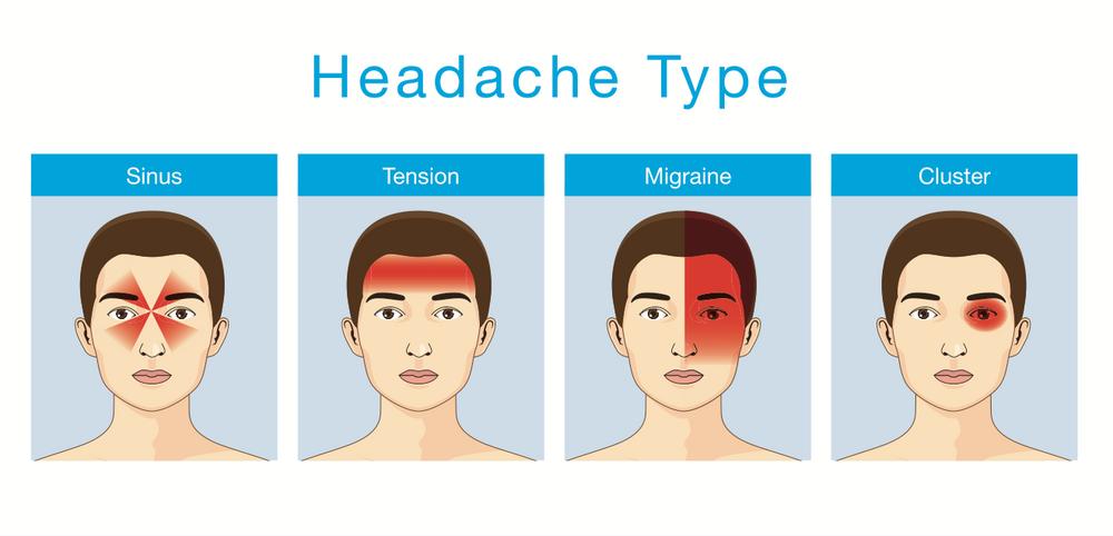 A tension-type headache