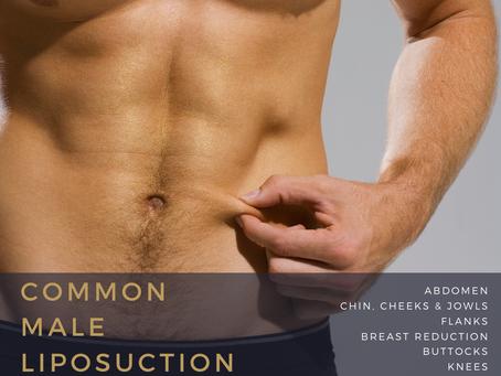Common male liposuction procedures.