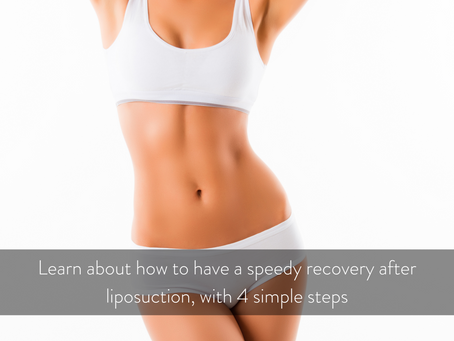 Want to know how to have a speedy recovery after liposuction?