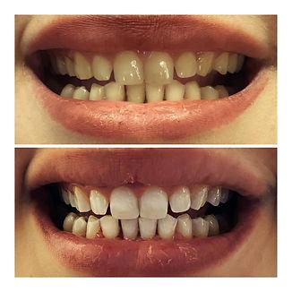 Πριν και μετά, λεύκανση δοντιών