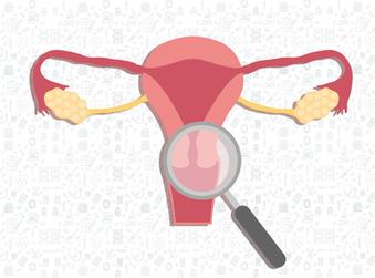 Cervical Cancer Screening Resumes