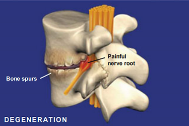 painful nerve root