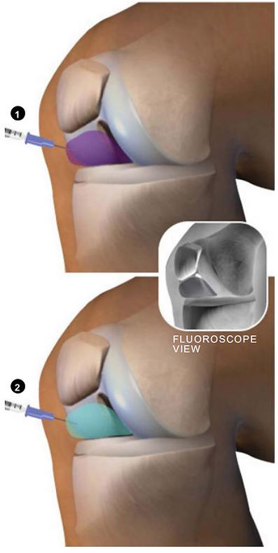 fluoroscope view