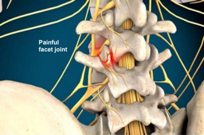 painful facet joint