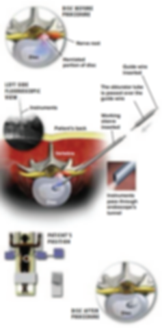 disc before procedure