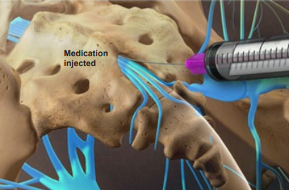 mediction injection