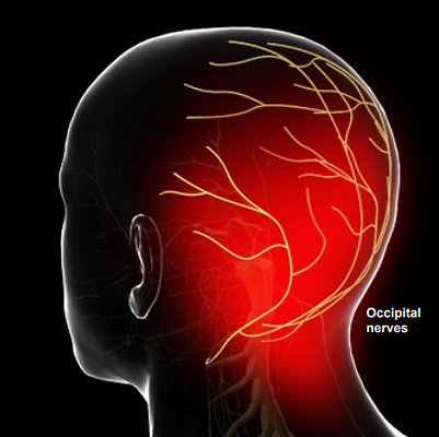 occipital nerves