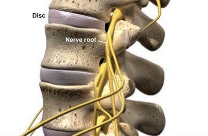 disc nerve root