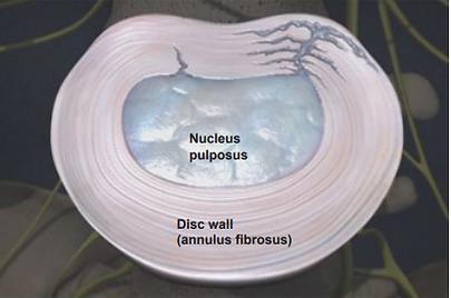 nucleous pulposus