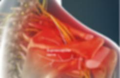 suprascapular neuro pain