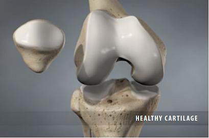healthy cartilage
