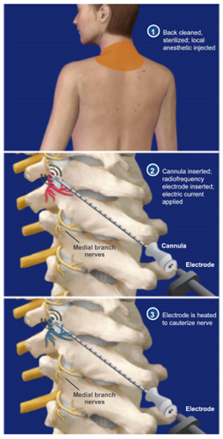 cervical facet