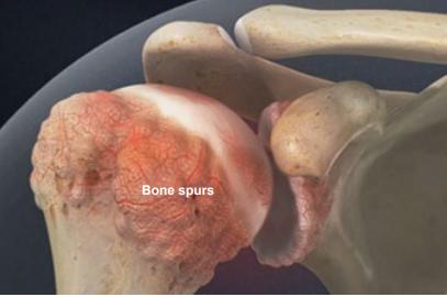 bone spur