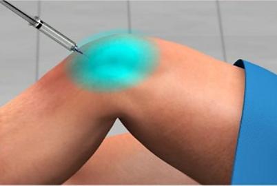 knee pain release