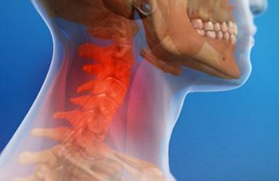 whiplash pain neck