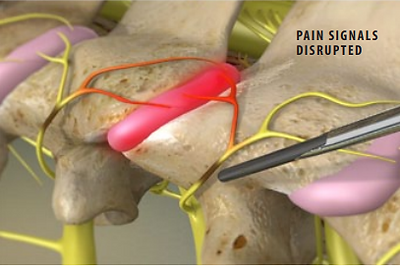 pain signals disrupted