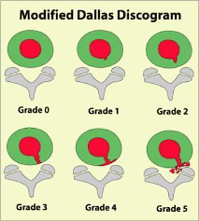 discogram