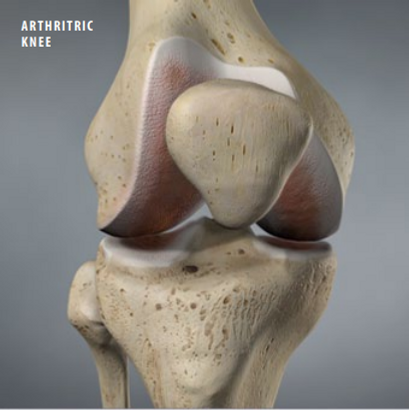 athritic knee