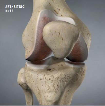 athritic knee
