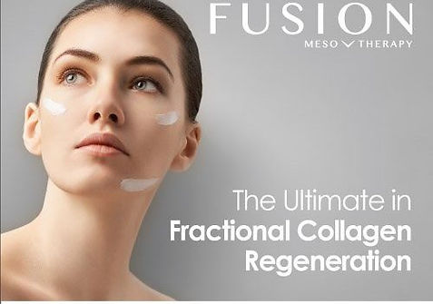 Ekseption fusion-meso-micro-500x460.jpg