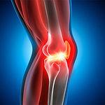 Osteoartritis-de-rodilla-definicion-caus