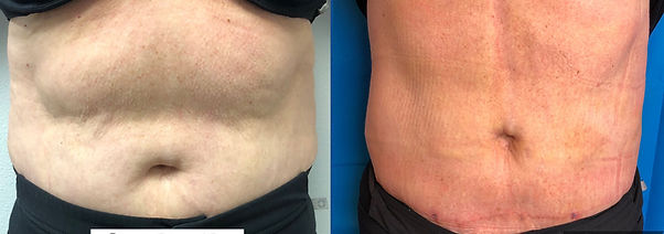 BodyTite Before and After | Abdomen