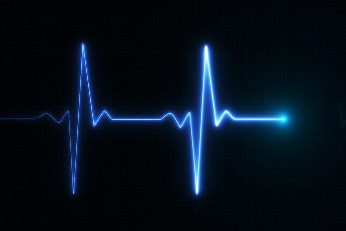 EKG heartbeat monitor