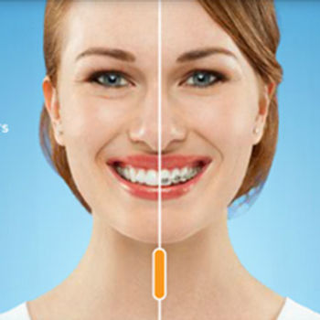 invisalign dentist richardson tx