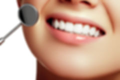 DFW Dental Service Invisalign Family Cosmetic Implants