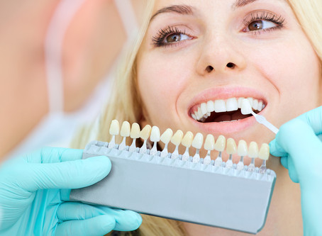 Your Cosmetic Dentist in Portland, Gresham, Happy Valley, Milwaukie Explains Dental Veneers