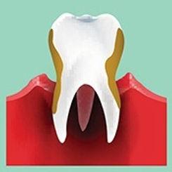 stock_periodontal.jpg