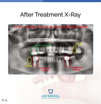 Air Dental Family and Cosmetic Dentistry & Burbank Dental Implants
