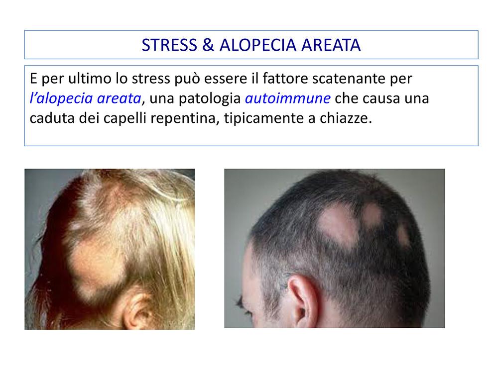 STRESS-CADUTA-STEMCELL-26ottobre2020-20.