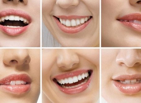 The relationship between dental health and malocclusion was clarified.