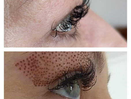 Say Goodbye to Loose Skin and Eyebags with Fibroblast Plasma Skin Tightening