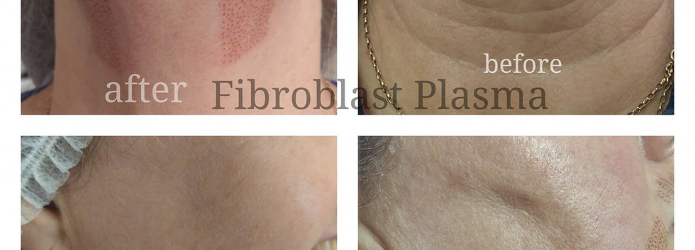 Neck Lift - Cheek and Jowl Lift