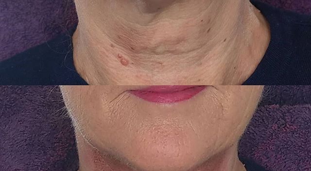 Plasma skin tightening treatment on the