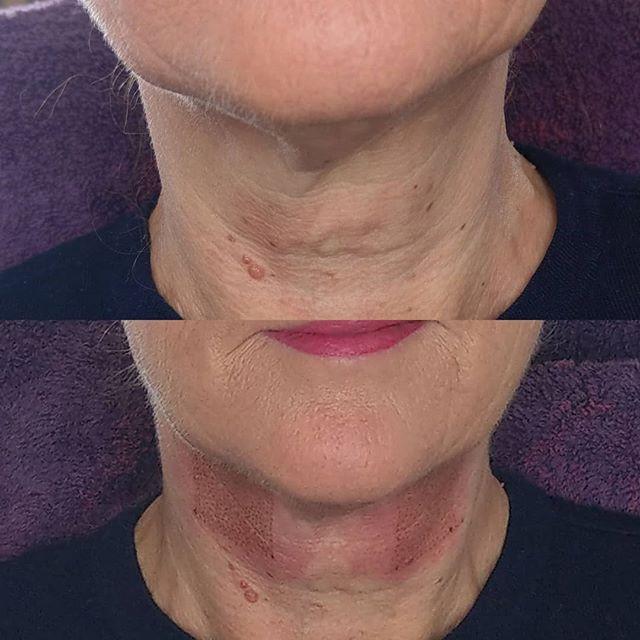 Plasma skin tightening treatment on the