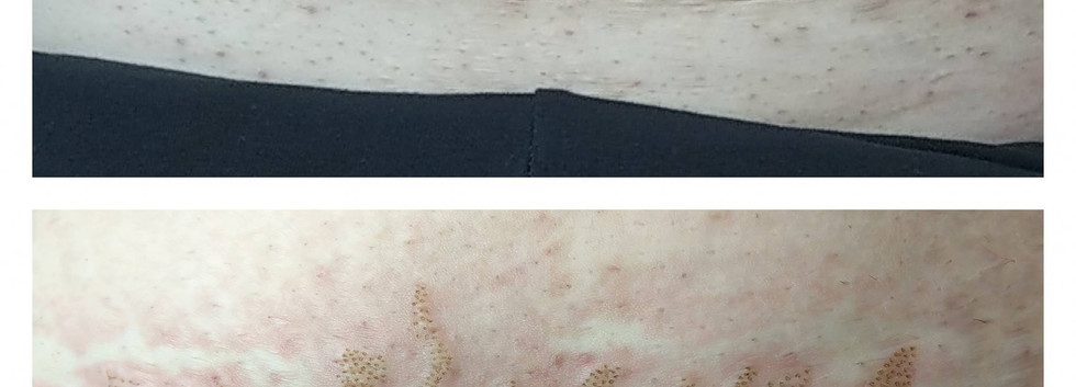Fibroblast Plasma Stretch Mark Reduction