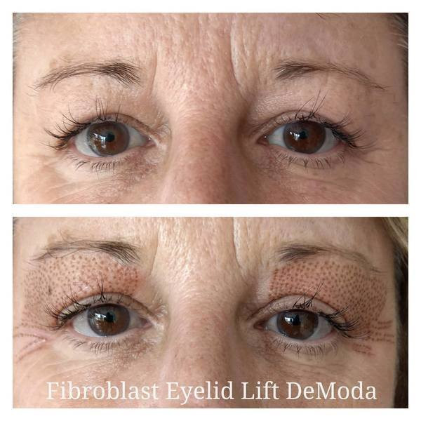 Fibroblast Plasma Eyelid Lift