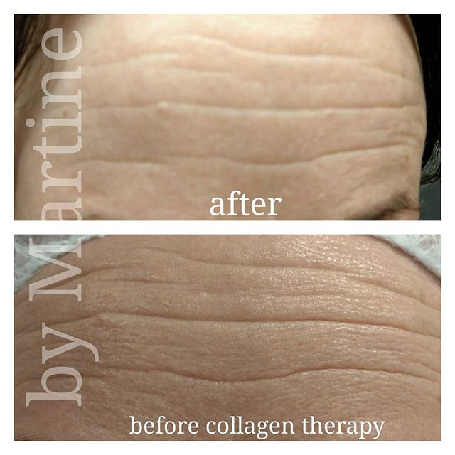 One session of Actfast Collagen Therapy.