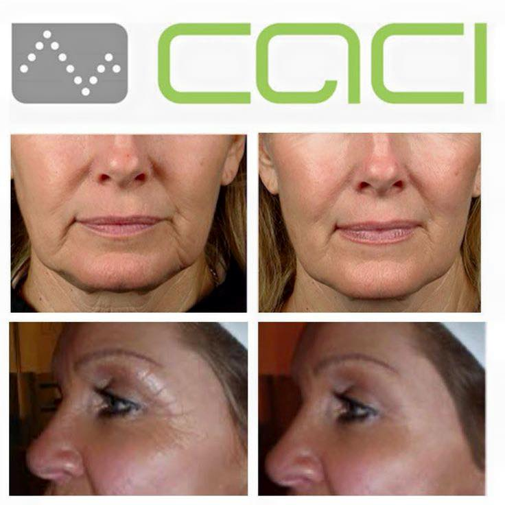 caci before and after images