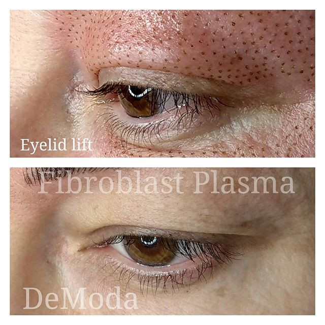 Eyelid lift before and on the day of tre