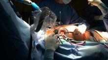 Кардиохирурги ОКБ Ханты-Мансийска впервые в Югре удалили опухоль сердца из минидоступа