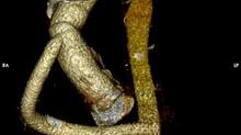Одномоментное хирургическое лечение комплексной патологии аорты в кардиохирургическом отделении